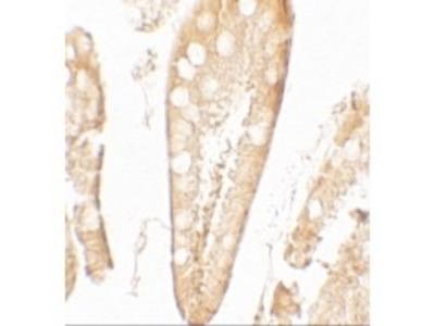 Rabbit Anti-CFTR, CT Antibody