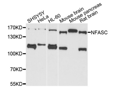 Rabbit Anti-NFASC Antibody