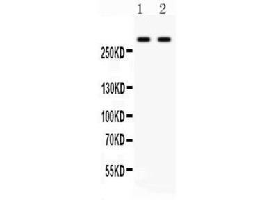 Rabbit Anti-ITPR3, NT Antibody