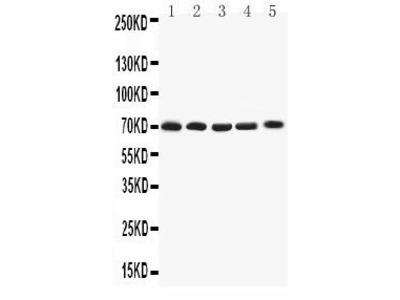 Rabbit Anti-KCNA4 Antibody