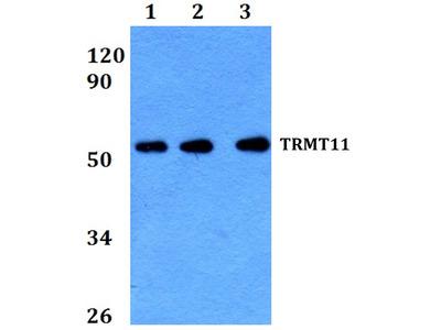 Rabbit Anti-TRMT11 Antibody