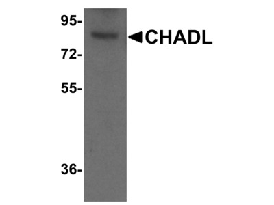 Rabbit Anti-CHADL, CT Antibody