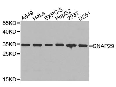 Rabbit Anti-SNAP29 Antibody