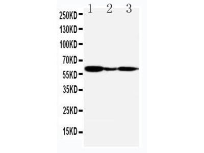 Rabbit Anti-G-Protein Coupled Receptor 30, CT Antibody