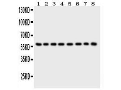 Rabbit Anti-P2RX2 Antibody