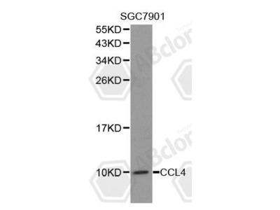 Rabbit Anti-CCL4 Antibody