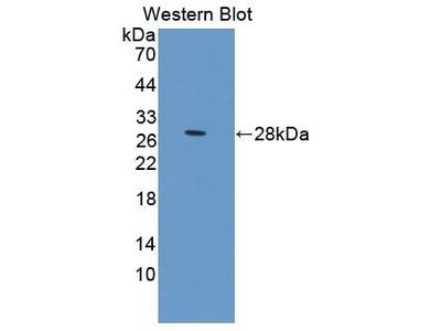 Pab Rb x human PRLR (Prolactin Receptor) antibody