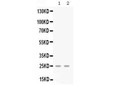 Rabbit Anti-GRO gamma Antibody