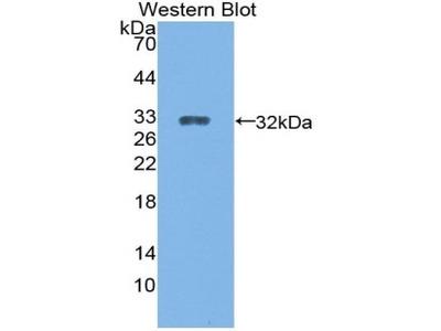 Rabbit Anti-CYP27B1 Antibody