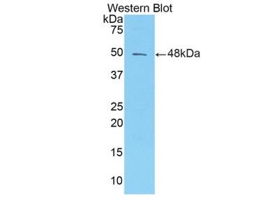 Rabbit Anti-Alpha-1-Microglobulin/Bikunin Antibody