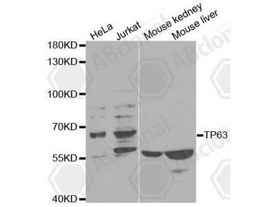 Rabbit Anti-TP63 Antibody
