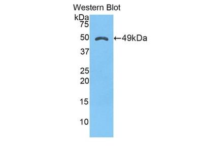 Rabbit Anti-a1M Antibody