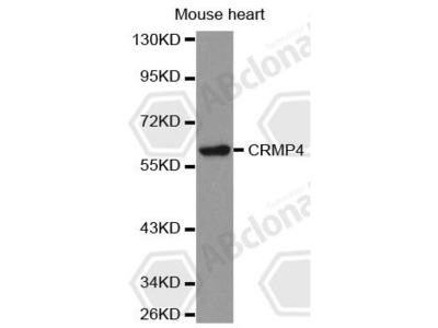 Rabbit Anti-DPYSL3 Antibody