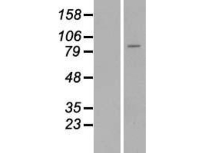 Transient overexpression lysate of suppression of tumorigenicity 14 (colon carcinoma) (ST14)