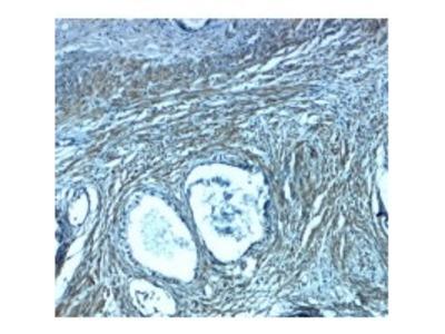 Rabbit Anti-PMEPA1 Antibody