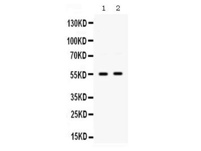 Rabbit Anti-SMYD3 Antibody
