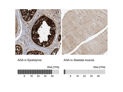 Anti-AGA Antibody