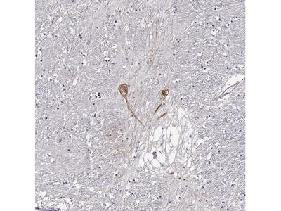 Anti-GNRH1 Antibody
