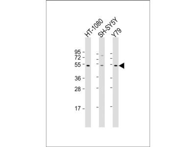 Rabbit Anti-ZNF513, NT Antibody