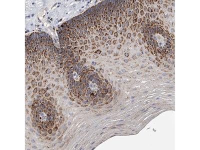 Anti-KLHL7 Antibody