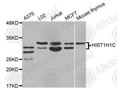 Rabbit Anti-HIST1H1C Antibody
