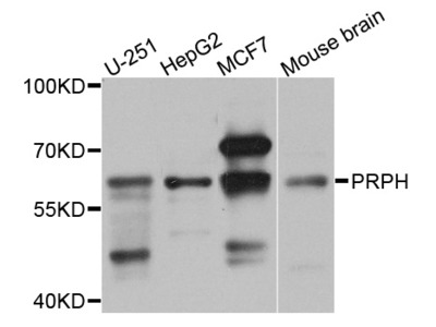 Rabbit Anti-Peripherin Antibody