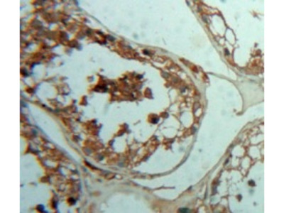 Rabbit Anti-PTHR2 Antibody