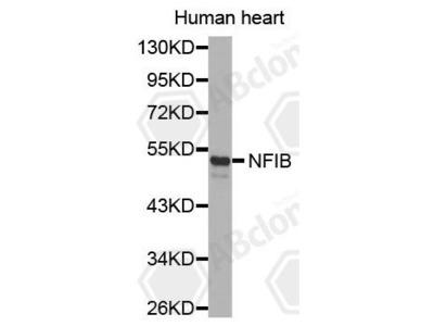 Rabbit Anti-NFIB Antibody