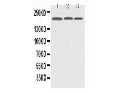 Rabbit Anti-EGFR Antibody