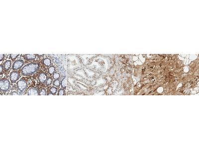 Mouse Anti-Periostin Antibody