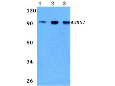 Rabbit Anti-ATXN7 Antibody