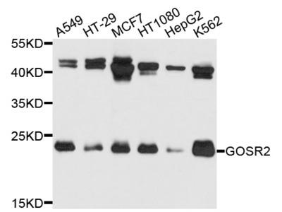Rabbit Anti-GOSR2 Antibody