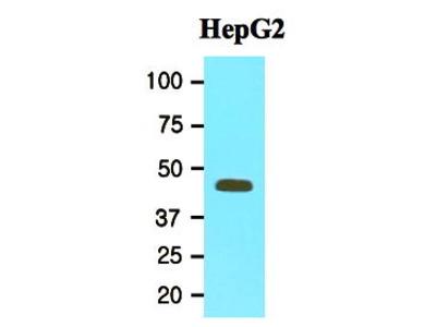 Mouse Anti-MAT2A Antibody