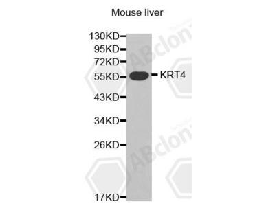 Rabbit Anti-KRT4 Antibody