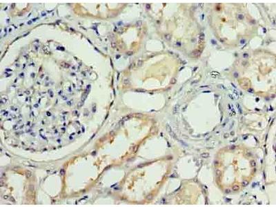 Rabbit Anti-Amyloid beta A4 Protein Antibody