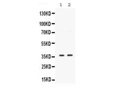 Rabbit Anti-SIX1 Antibody