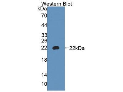 Rabbit Anti-A4GALT Antibody