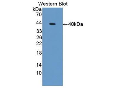 Rabbit Anti-S100A14 Antibody