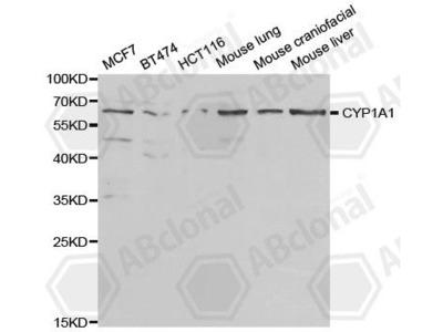 Rabbit Anti-CYP1A1 Antibody