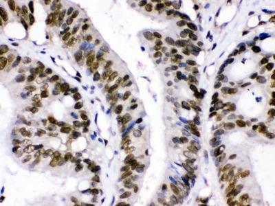 Rabbit Anti-CRM1 Antibody
