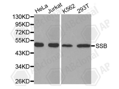 Rabbit Anti-SSB Antibody