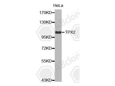 Rabbit Anti-TPX2 Antibody