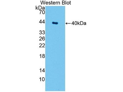 Rabbit Anti-SPTLC1 Antibody