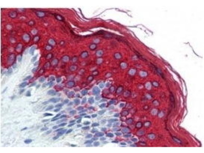 Mouse Anti-Cytokeratin 10 Antibody