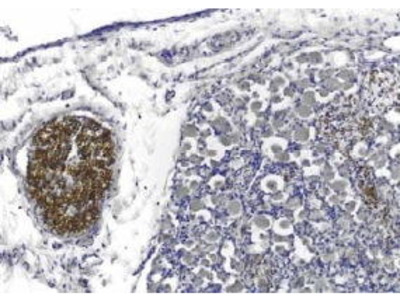 Mouse Anti-PMP22 Antibody