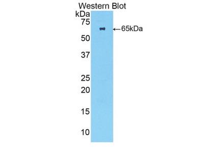 Rabbit Anti-TNNC2 Antibody