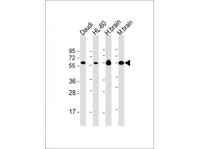 Mouse Anti-PACSIN2 Antibody