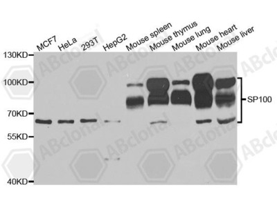 Rabbit Anti-SP100 Antibody
