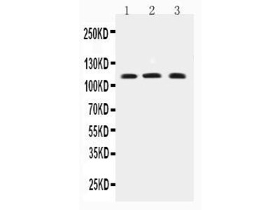 Rabbit Anti-TRPC4, CT Antibody