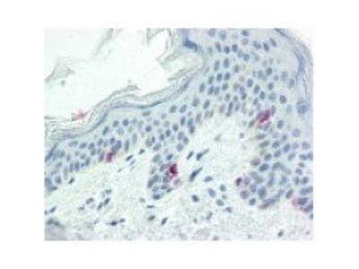 Mouse Anti-Tyrosinase Antibody